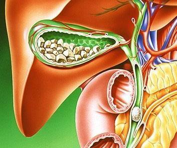 лечение желчнокаменной болезни в Запорожье