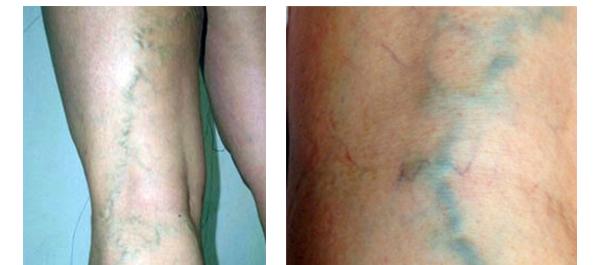склеротерапия вен 2