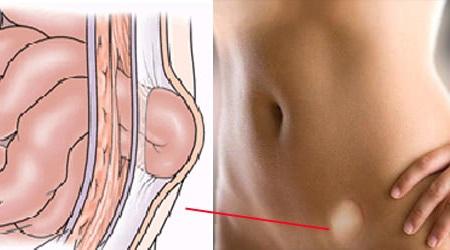 Вирус папилломы человека: фото, симптомы и лечение