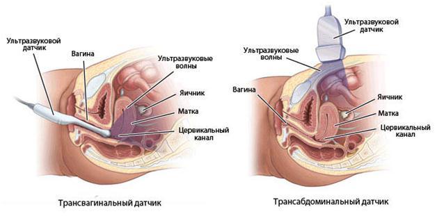 Діагностика кісти яєчника