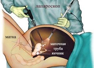 Операция при кисте яичника