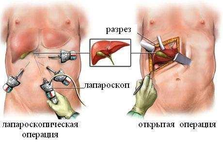 Лапароскопическая холецистектомия