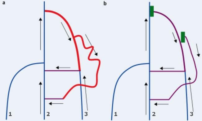 Схема выполнения CHIVA