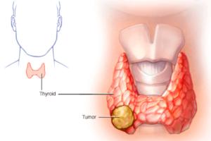 лечение щитовидной железы в Запорожье