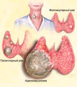опухоли на щитовидке