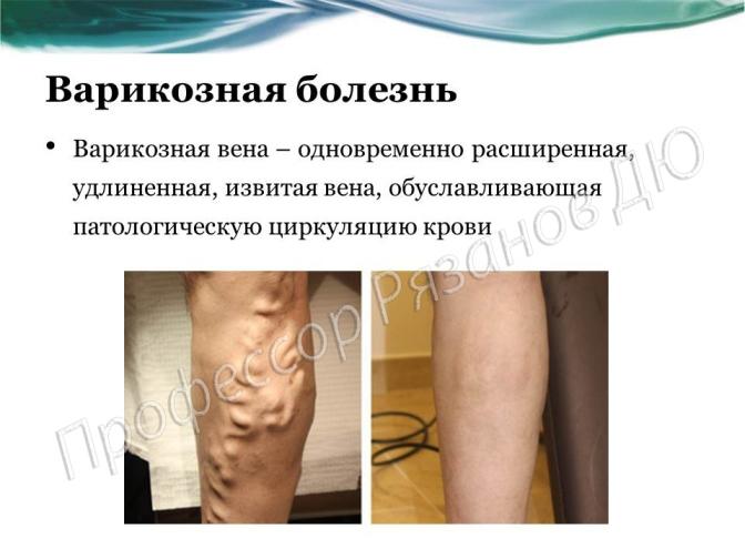 Лечение варикоза в Запорожье